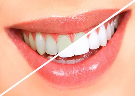 Tanden bleken - Tandarts Heerlen